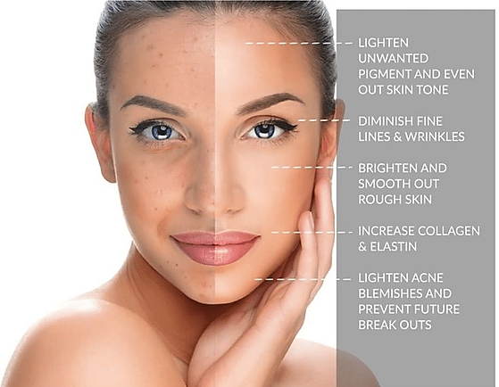 chemical-peels-at-VIVAA-Issaquah-and-Bel