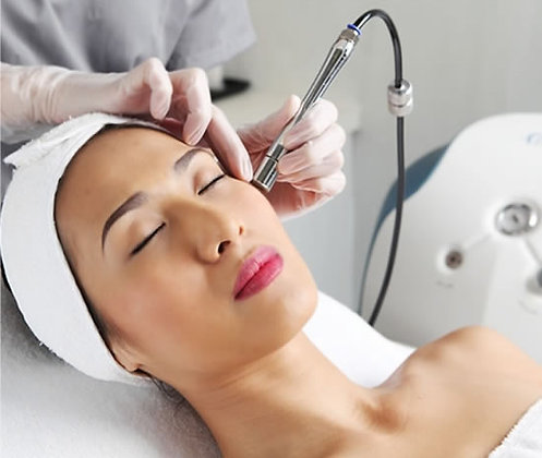 Series Of 12 Microdermabrasion Facial Treatments