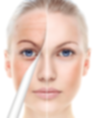 girl-face-with-peel-away-for-OUTSIDE-of-