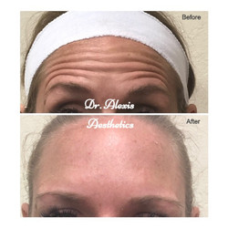 Botox-Before-%2526-After-Forehead-compre