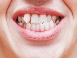 Consecuencias de la maloclusión dental