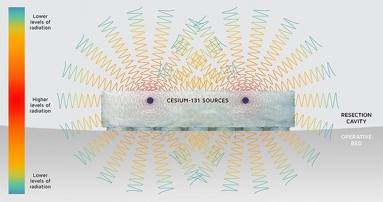 cs-131-intensity3.png
