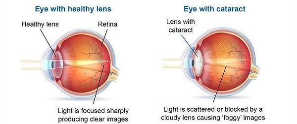 Normal & Cataract.jpg