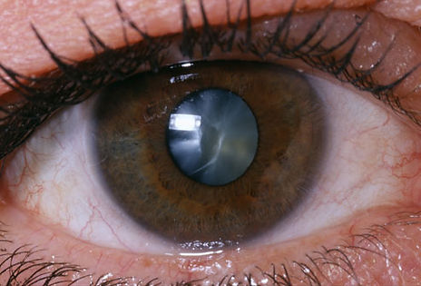 princ_rm_photo_of_close_up_of_eye.jpg