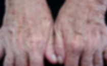 tratamento laser para manchas
