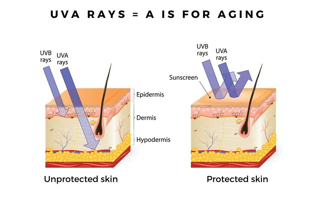 Sun Damage When the sun's UVA rays hit the dermis, collagen and elastin fibers become fragmented, hardened, and dysfunctional.