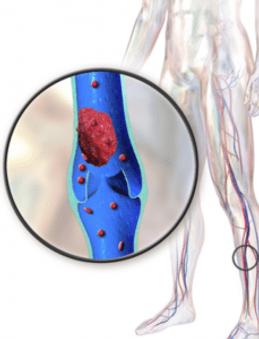 trombose venosa profunda brasilia tratamento medico indicado angiologista angiologia trombose risco plano piloto brasilia df