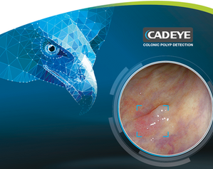 Fujifilm acquires CE mark and launches CAD EYE