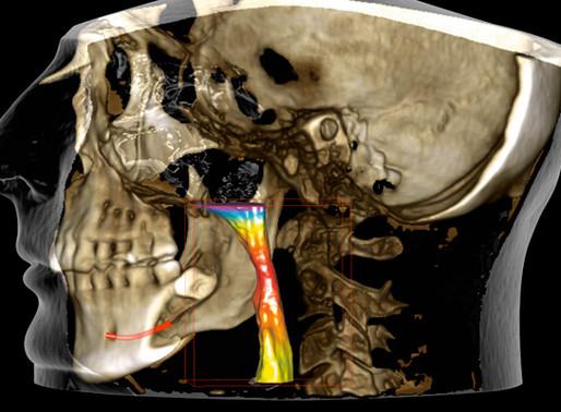 Planmeca Ultra Low Dose, un protocole qui veille à la sécurité des patients