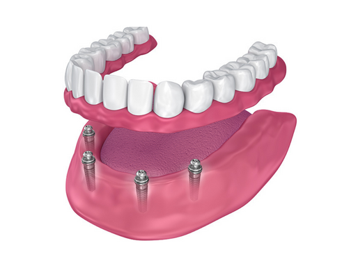 All On 4 and All On 6 Dental Implants