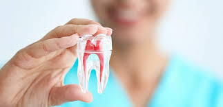 Root-Canal-Treatment-Cost-In-Bangalore.j