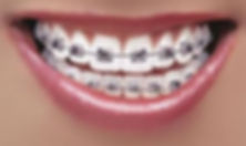 Dental Braces Bangalore