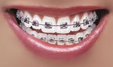 Dental Braces Bangalore