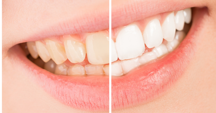 Teeth Whitening In Bangalore.png