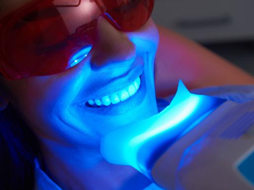 Is Teeth Whitening Permanent?