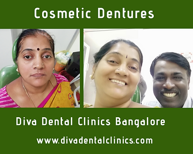 Complete Denture In Bangalore.png