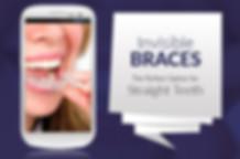 Invisible Braces Cost