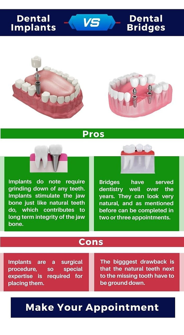 Dental Implant Pros and Cons.jpeg