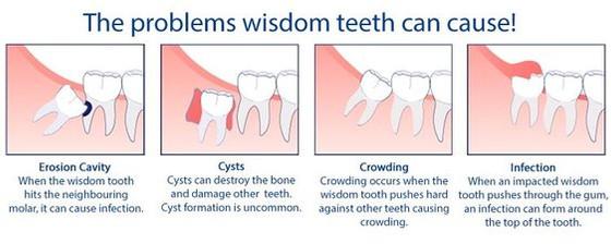 Wisdom Tooth Problems