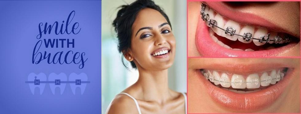 Orthodontist In Bangalore