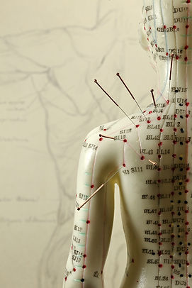 acupuncture in bracknell