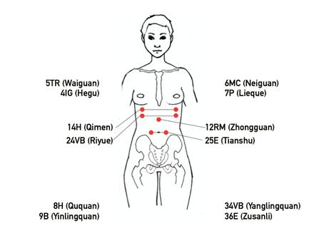 8 puntos Mágicos del Dr. Tan + puntos Mu-ventrales para desórdenes digestivos y dolor abdominal