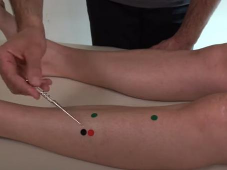 Punto de Tung para el Estancamiento sistémico de Sangre y Flema
