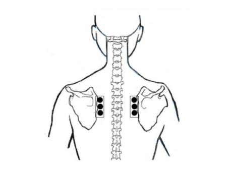 Microsangrado de la Acupuntura Tung para el dolor de rodilla crónico