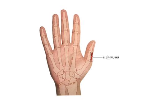 Punto de Tung para el dolor e hinchazón de manos y pies (11.27 Wu Hu)