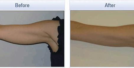 טריפולאר - טיפולי מיצוק עור פנים וגוף ללא ניתוח