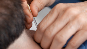 What is the difference between acupuncture and dryneedling?