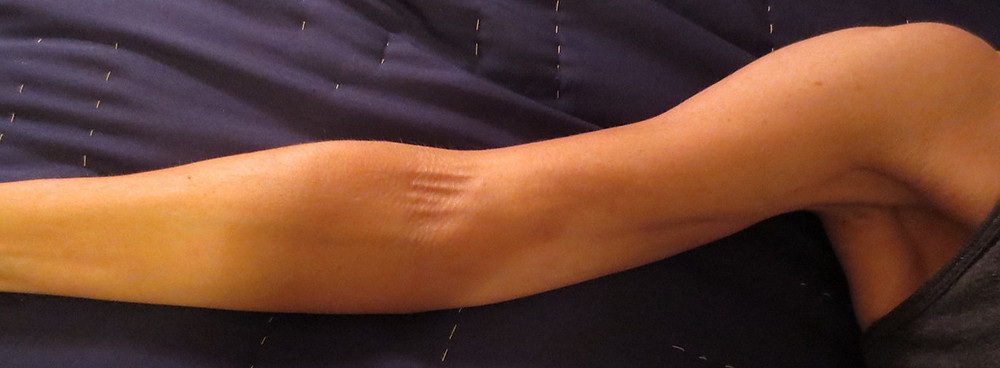 Axillary Webbing Syndrome | Wellbeing Physiotherapy Leederville