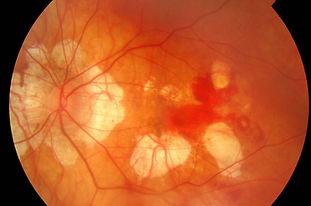 glaucoma-1-1024x641.jpg