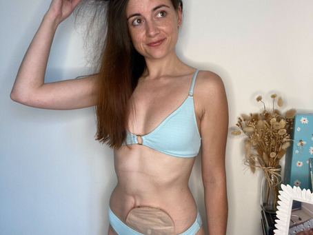 Learning to Love Yourself After Life-Saving & Changing Surgery