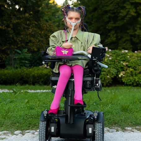 What It's Like to Be a Model With a Disability