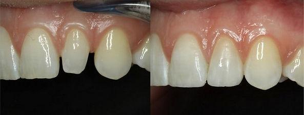 למינייט ציפוי שן