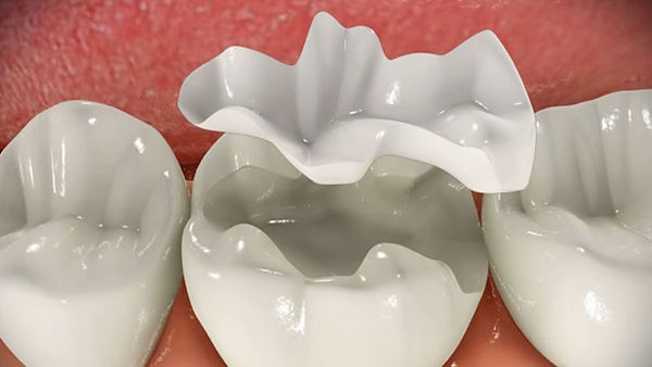 dental-inlay-in-rotherham-image.jpg
