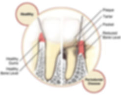 perio-disease-vs-healthy-gums.jpg