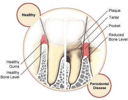 perio-disease-vs-healthy-gums.jpg