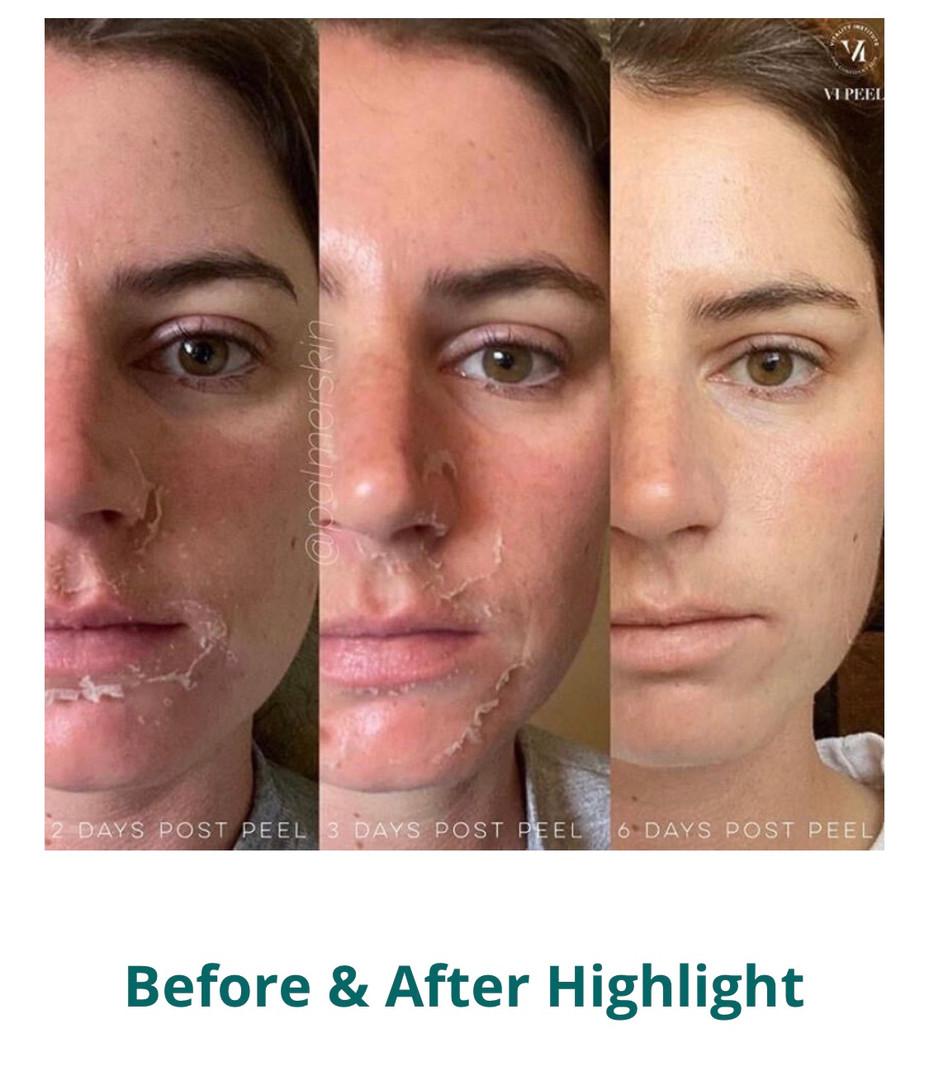 Skin Rejuvenation And Wellness
