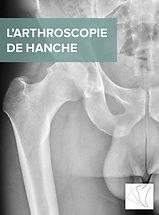 L'ARTHROSCOPIE_DE_HANCHE.jpg