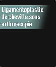 ligamentoplastie.png