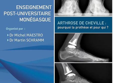 Arthrose de cheville : pourquoi la prothèse et pour qui ?