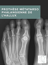 Prothese_metatarso_phalangienne_hallux.j