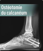 osteotomie.png