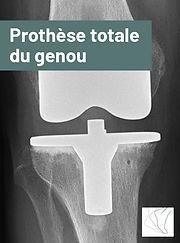 prothese_totale_genou.jpg