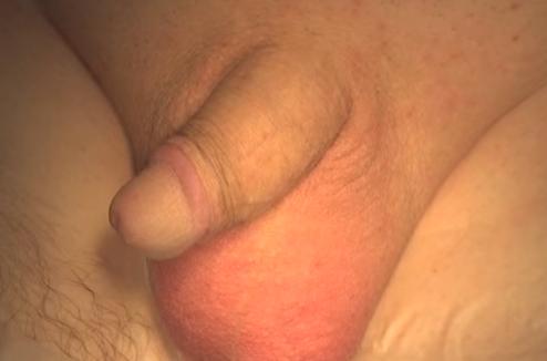 Penis Protezi