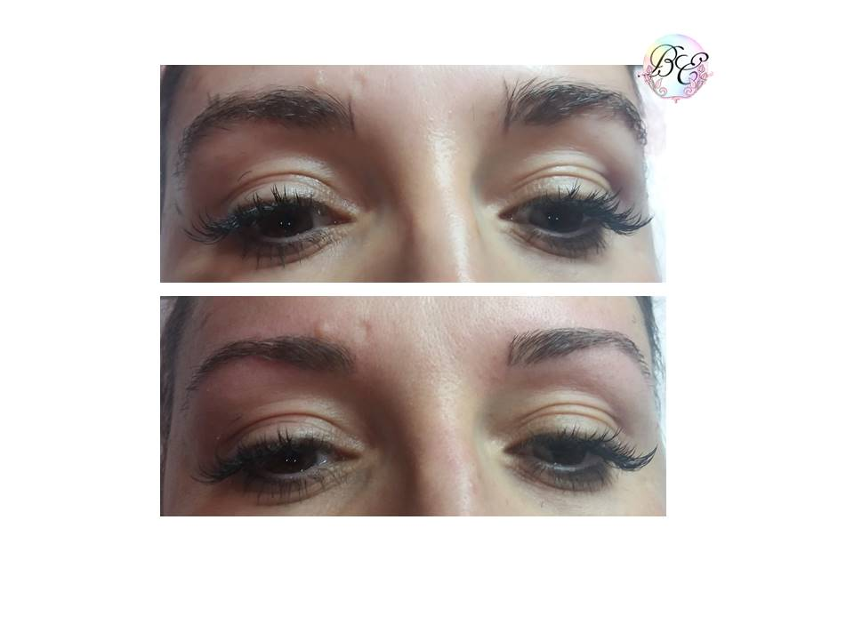 restructuration_sourcils_au_fil_Zeghdane