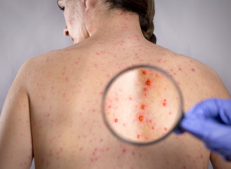 Why older Australians should take up the free government Shingles vaccine!
