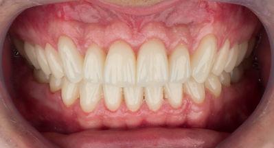 Reabiltação Oral (lentes de contato dental)